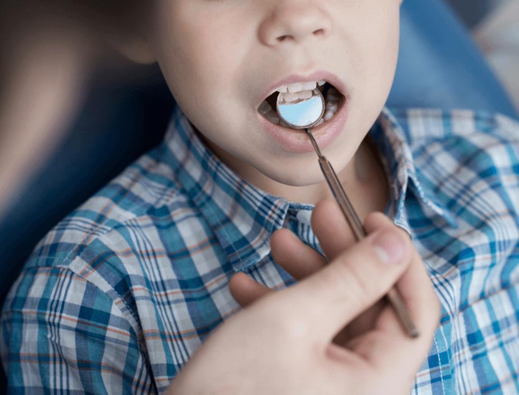 Ipomineralizzazione dello smalto: un problema sempre più frequente nei giovani pazienti