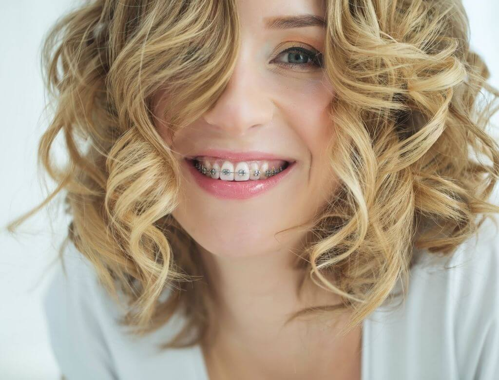 L'apparecchio ortodontico nell'Adulto